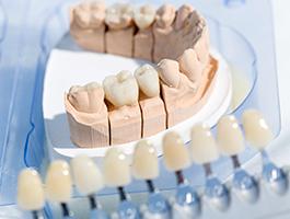 失活歯のホワイトニング