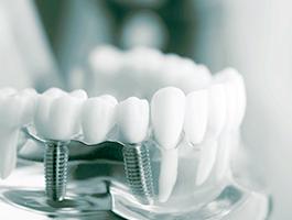 インプラント専門歯科技工士